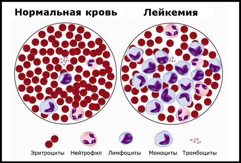 лейкоз
