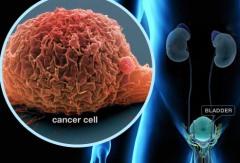 Новые методики в лечении рака, Израиль