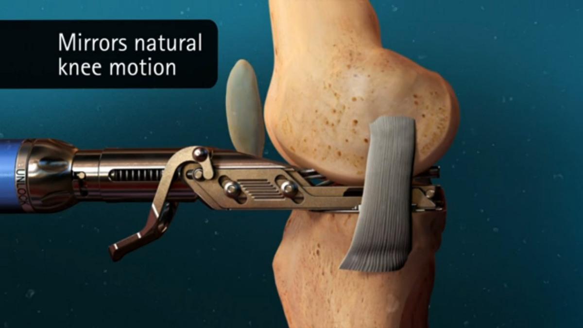 Малоинвазивное протезирование коленного сустава