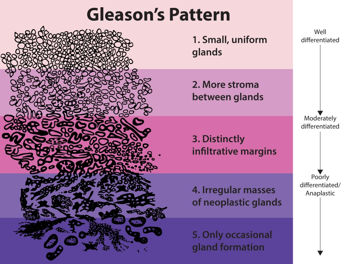 Прогноз и коэффициент по Глиссону