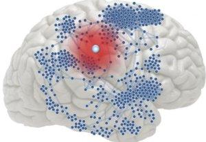 эпилепсия причины